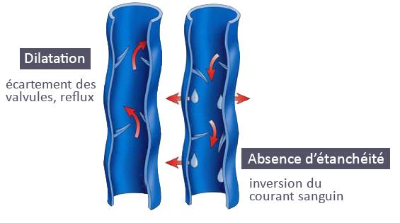 Insuffisance veineuse sans traitement par compression veineuse